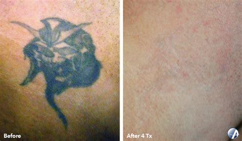 inkaway laser tattoo removal