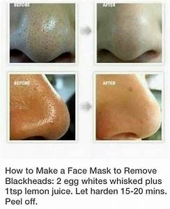 How To Get Rid Of Blackheads On Nose And Face