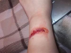 Arm Cut by ToxicScars666 on DeviantArt