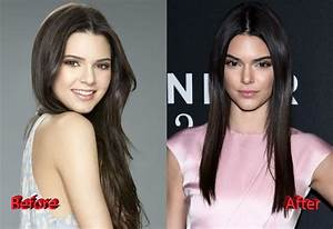Kendall Jenner Nose Before And After image gallery