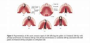 Orofacial Clefts And Quality Of Life  U2013 Dentistry Insider