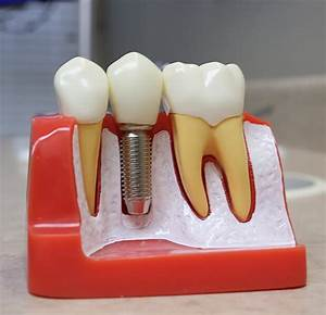 Quality Dental Implants In Fishers  In