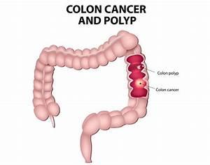 Colorectal Cancer  Symptoms  Treatment  Risk Factors  And
