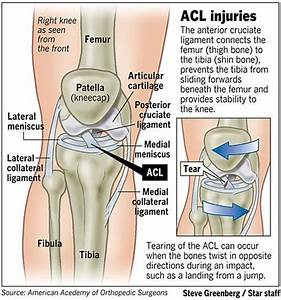 231 Best Images About Knee Injury Recovery On Pinterest