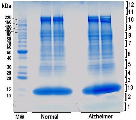 sds page  rbc membrane proteins sample  coomassie