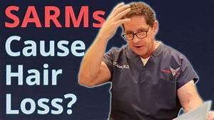 Do Sarms Cause Hair Loss