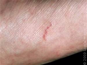 The Scabies Rash | skinsight