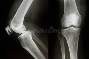 Skeleton  Hip  Femur  Tibia  Fibula  Ankle And Foot Bones