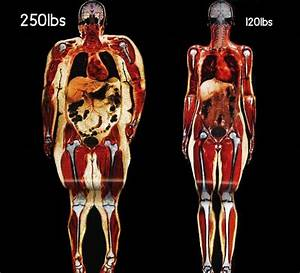 What Your Body Fat Really Looks Like  U2013 Heart Sisters