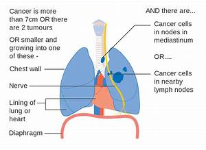 File Diagram 2 Of 3 Showing Stage 3a Lung Cancer Cruk 014