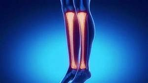 Fractures Of The Tibia