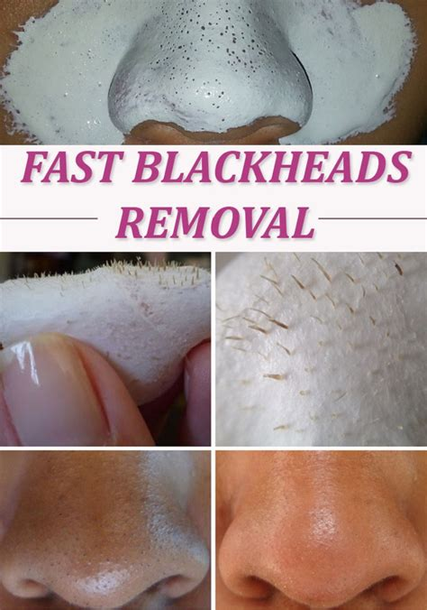 how to get rid of blackheads 15 blackhead removal diys to clean your skin naturally