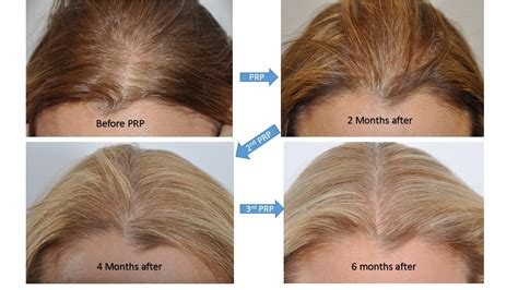 hair restoration hair transplant surgery  women