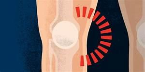 Inner  Medial  Knee Pain