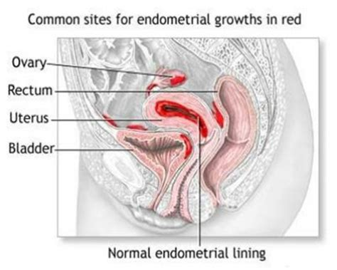 natural treatment for endometriosis how to treat