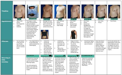Gynecomastia Healing Process After Surgery With Dr Cruise