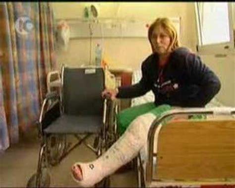 leg cast in jude hospital