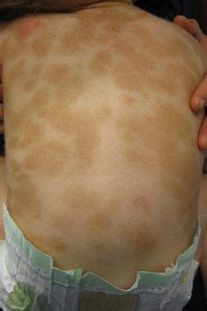 hot tub after breast biopsy urticaria pigmentosa causes symptoms treatment