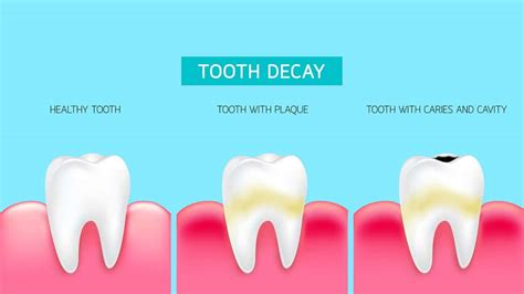 stages  dental decay trublu dentistry