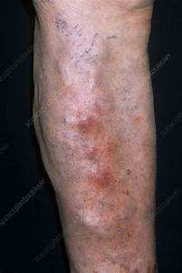 Superficial thrombophlebitis - Stock Image M175/0450 ...  Superficial