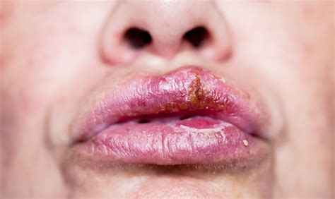 Everything You Need To Know About Cold Sores