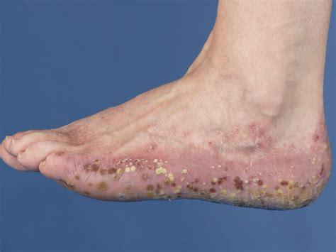 Psoriasis handen en voeten