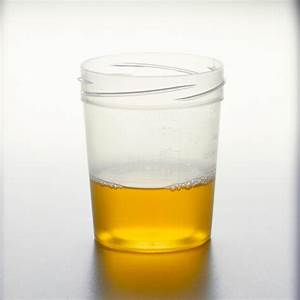Obesity Risk Can Be Detected In Your Urine  Says New Study