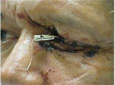 Eyelid and Orbital Implant Injury After Enucleation