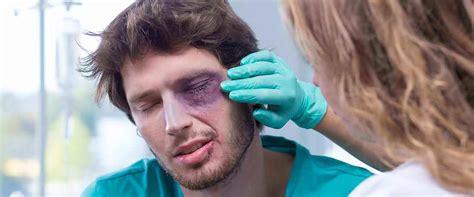 Lëndimet e syve - pse është e rëndësishme menjëherë të ...