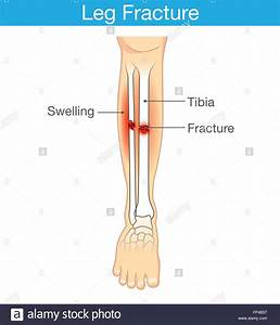 Distal Fibula Fracture Stock Photos  U0026 Distal Fibula