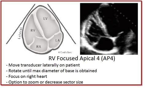 tips  implementing  ventricle quantification