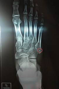 5th Metatarsal Fracture - Fracture Treatment