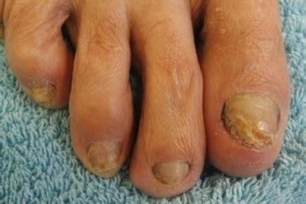 möbel nagel ilsfeld voetverzorging