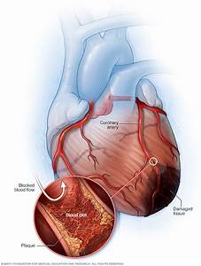 Heart Attack Disease Reference Guide