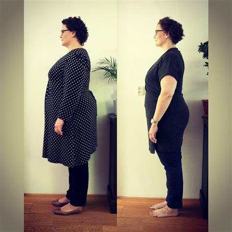 gastric sleeve voor en na