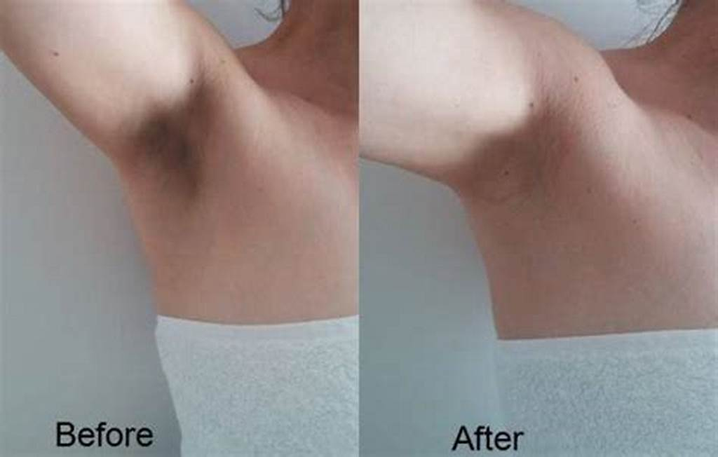 #How #To #Get #Rid #Of #Dark #Underarms #Health #And #Wellness