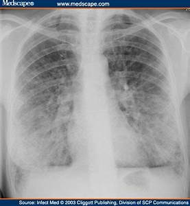 viral pneumonia chest x ray Quotes