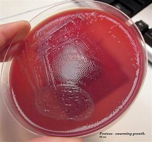 411 best images about MICROBIOLOGICS on Pinterest ...