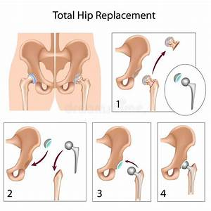 Total Hip Replacement Surgery Stock Vector