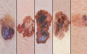 5 Scary Signs That You Need To Remove Birthmarks - Page 2 of 5 - Weakness is a Choice.  Skin Cancer Birthmarks - pigmented