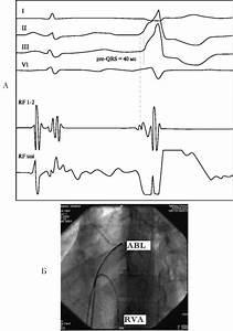 Как различать боль в сердце от боли остеохондроза