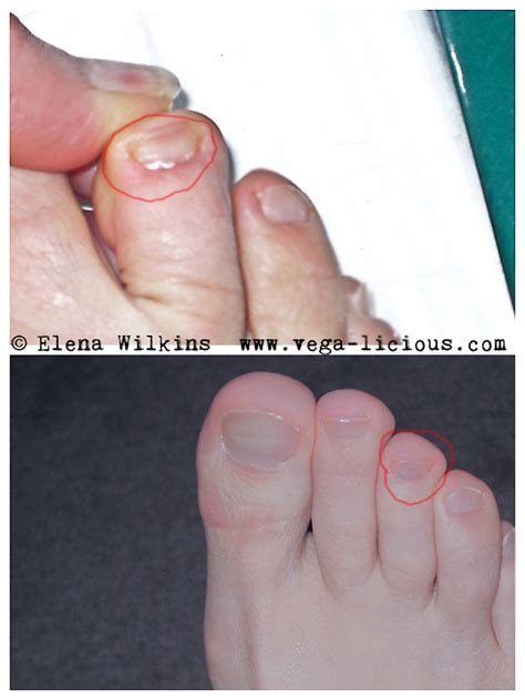 mycose siege toenail fungus treatment remedy vegalicious