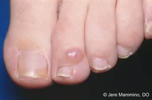 Mucous Cyst On Toe Treatment