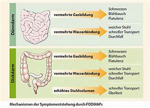 Reizdarmsyndrom, ursachen, Symptome Therapie mit Kijimea!
