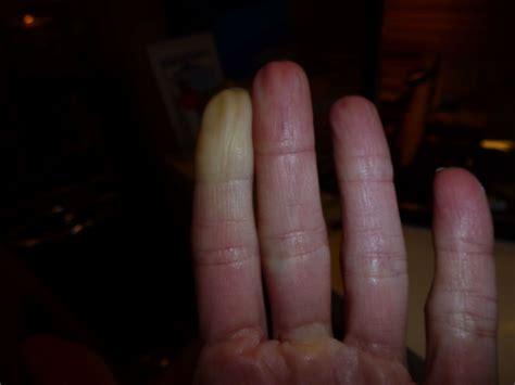 Raynaudsche Syndrom Furosemid Wirkung Auf Herz