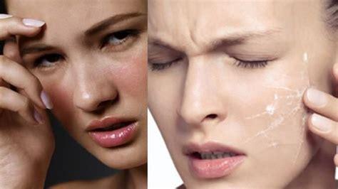 cara alami mengatasi kulit wajah kering bersisik dan gatal