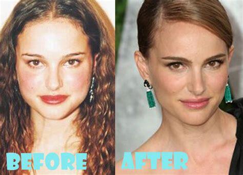 Natalie Portman Plastic Surgery Before After Nose Job