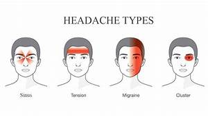 4 Types Of Headaches An Intro Guide To Headaches And Their