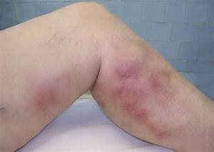superficial thrombophlebitis pictures - pictures, photos  Superficial