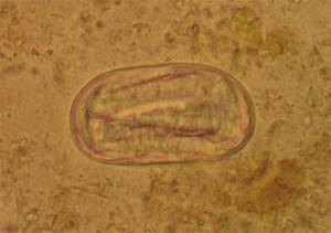 Ancylostoma Duodenale  Egg With Larva